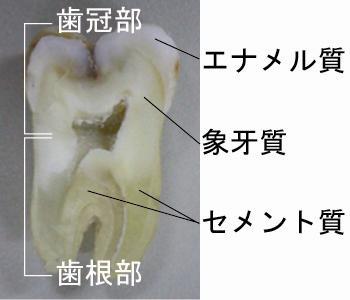 歯の構造 写真