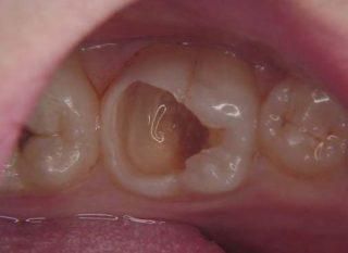 虫歯 画像