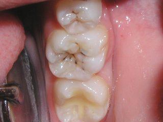 O面の虫歯 画像