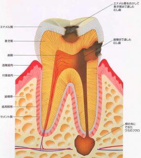 虫歯の進行 イラスト