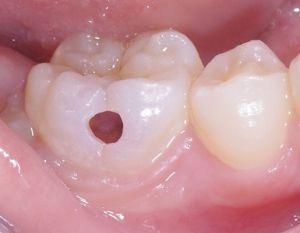 虫歯2 画像