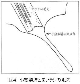 小窩裂溝 ブラシ